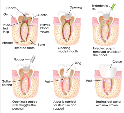 root canals pendleton oregon